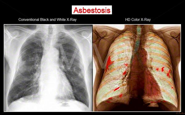 asbestosis-symptoms