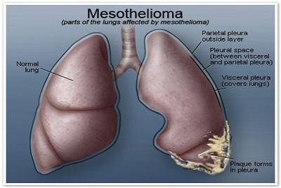 mesothelioma-lung400