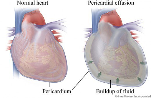 pericardial-mesothelioma-lungs