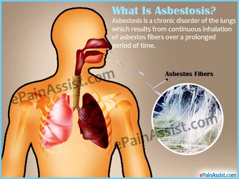 Asbestosis Prognosis in Lung? + Life Expectancy & Survival ...